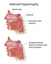 What are the adenoids?