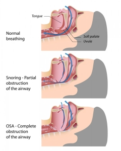 Snoring & Sleep Apnoea